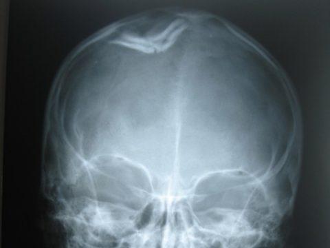 Характерные особенности вдавленного повреждения костной целостности черепа