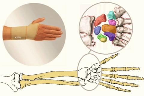 Лечение травм в области запястья начинается с его обездвиживания