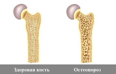 Лица с диагнозом остеопороз чаще подвергаются риску перелома шейки бедра.