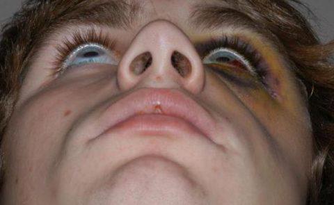 Механизм возникновения повреждений целостности глазницы