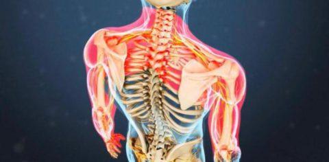 Нарушение функции дельтовидной мышцы.