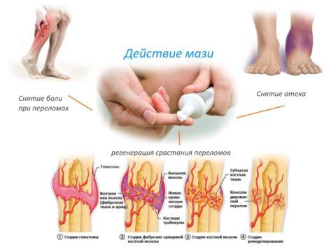Наружные средства при переломах позволяют улучшить кровообращение и трофику в травмированном участке, убрать боль и отечность, что ведет к скорейшему восстановлению.