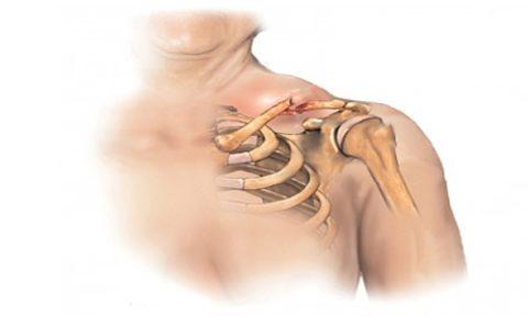 Неосторожные падения как одна из причин травмы ключичной кости