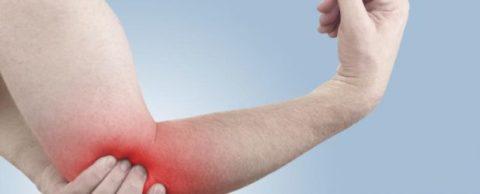 Обязательность иммобилизации пострадавшего с вывихнутым локтем