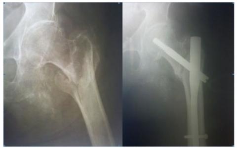 Оскольчатый перелом шейки бедра требует только хирургического вмешательства с внедрением укрепляющих металлических пластин.