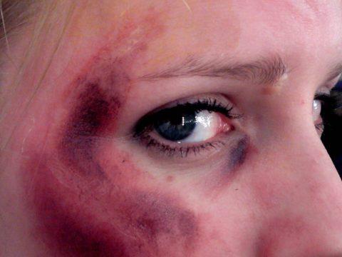 Основные причины развития последствий при сломанной глазницы