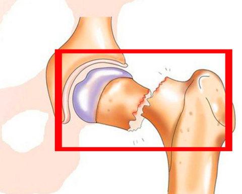 Открытый перелом один из самых сложных, ведет к разрыву мягких тканей.