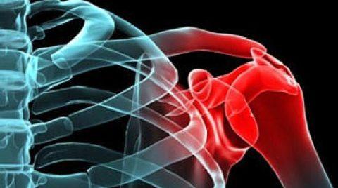 Перелом плеча сопровождается деформацией кости и сильным болевым синдромом