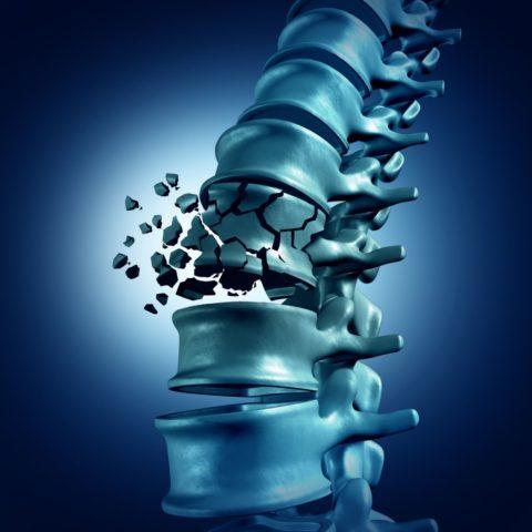 Переломы грудных позвонков не относятся к обыденным бытовым травмам