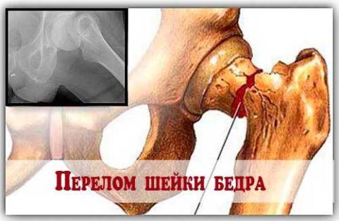 Переломы шейки бедра иногда основаны на психосоматических причинах.