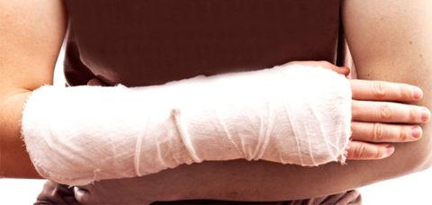 После проведения диагностики пострадавшему накладывается гипсовая повязка.