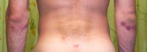 Появление синяков и кровоизлияний под кожным покровом из-за полученных ударов в область спины