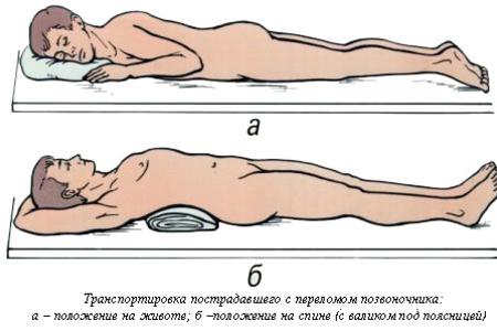 Правильная транспортировка больного при травмах спины