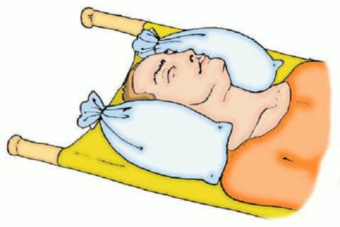 Предоставление своевременной помощи и лечебные методики для восстановления целостности костей черепа у детей