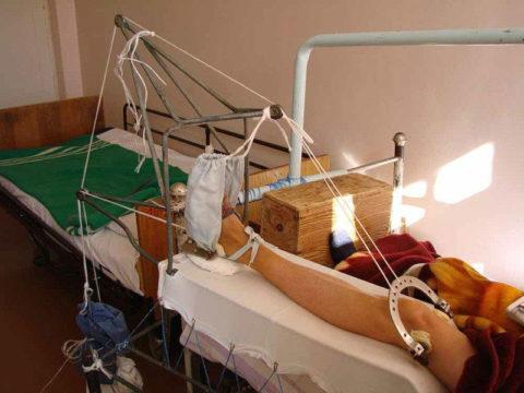 При сложных переломах больному требуется операция, после которой он должен длительное время лежать на вытяжке.