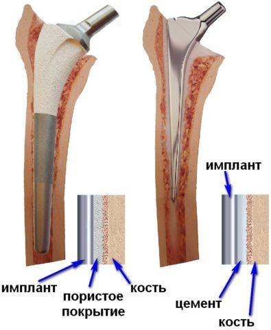 При тяжелых переломах шейки бедра требуется эндопротезирование тазобедренного сустава.