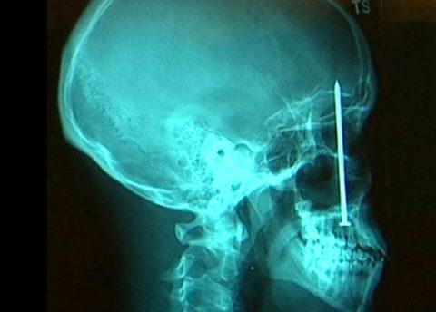 Рентгеновский снимок при дырчатом нарушении целостности костных структур черепа