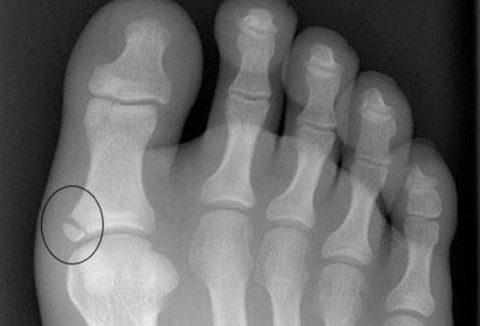 Рентгеновский снимок при смещении костных отломков на пальцах ноги