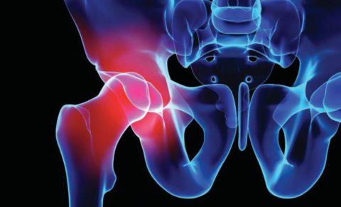 Риск повреждения целостности внутренних органов в области таза при получении сильного удара