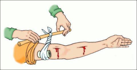 С целью остановки кровотечения пострадавшему выше раны накладывается жгут.