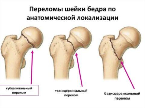 Считается, чем меньше угол линии перелома, тем опаснее перелом.