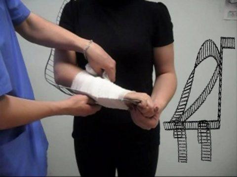 Шина Крамера позволяет смоделировать конструкцию под любой тип конечности.