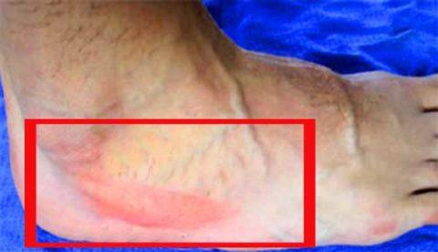 Симптоматические проявления поврежденной костной структуры стопы