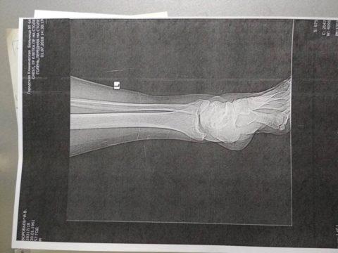 Снимок перелома лодыжки