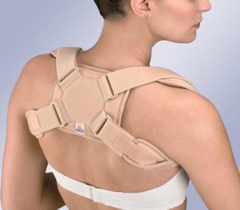 Современные способы фиксации верхней части тела после перелома ключичной кости