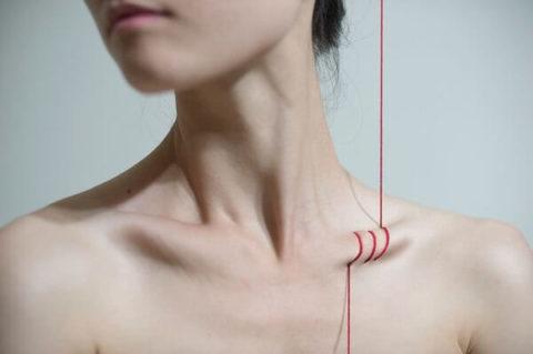 Сроки заживления сломанной ключичной кости у пациентов разных возрастных категорий