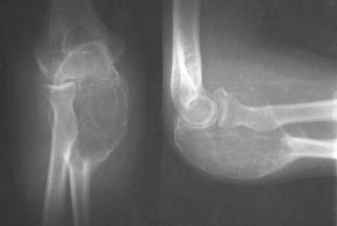 Травматический остеомиелит