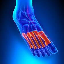 Травмированные фаланги пальцев нижней конечности и их последствия для двигательной функции ноги