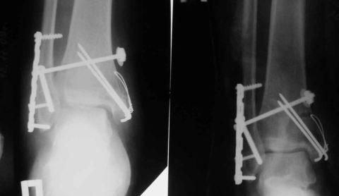 Установление пластин и винтов для скрепления перелома лодыжки