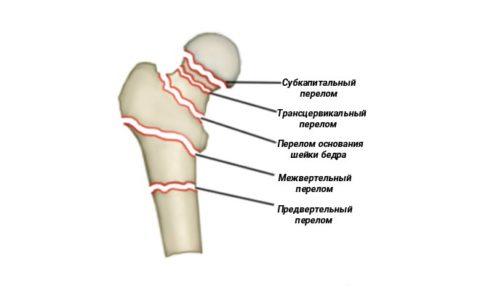 В медицинской практике различают несколько типов перелома бедренной кости.