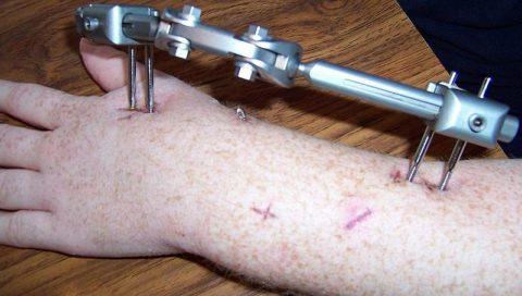 В тяжелых ситуациях врачи требуется укрепление костей предплечья медицинскими металлоконструкциями.