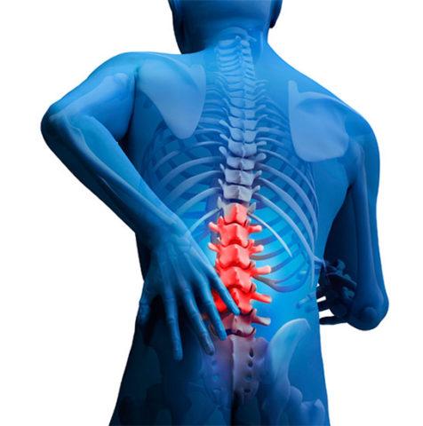 Варианты консервативного и радикального лечения при ушибе спины