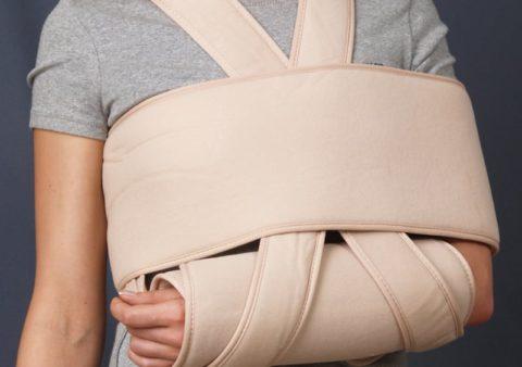 Встречаемость перелома плеча составляет 48%