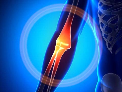 Выраженная симптоматика повреждения нормального положения локтевой костной ткани в теле