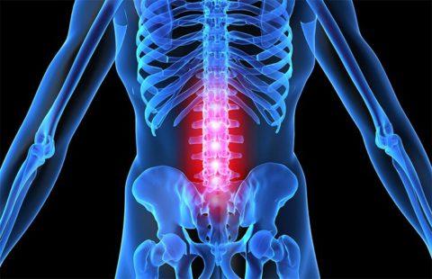 Выраженность симптоматических проявлений перелома поясничных фрагментов позвоночного столба