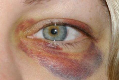 Выраженные симптоматические признаки нарушенной целостности глазницы