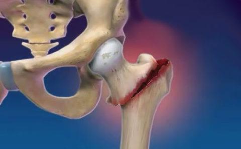 Высокоэнергетические причины получения перелома тазовых костей