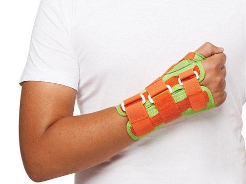 Жёсткая фиксация кисти не позволяет костным обломкам сместиться после их репозиции