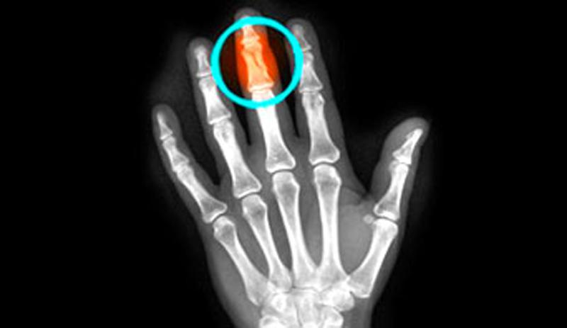 Преимущества рентгенографического диагностического исследования при травмах пальцев