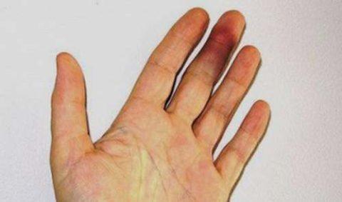 Формирование гематом и отечности в месте полученного перелома фаланги пальца