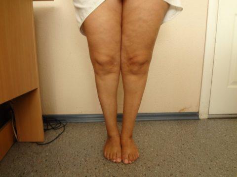 Мышечная атрофия - частое осложнение длительного обездвиживания