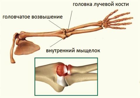 На фрагменте – отделение хрящевой пластинки головчатого возвышения на плечевой кости