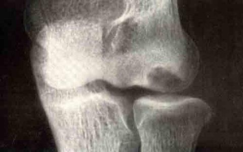 Одно из возможных последствий – отмирание хряща на головчатом возвышении (тёмное пятно)