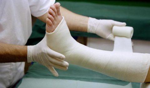 При переломе обычно иммобилизуют всю голень