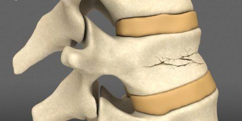 Причины повреждения целостности тела третьего позвонка поясничного отдела