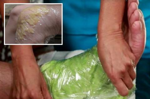 Действенность капустного и картофельного лечения доказана временем